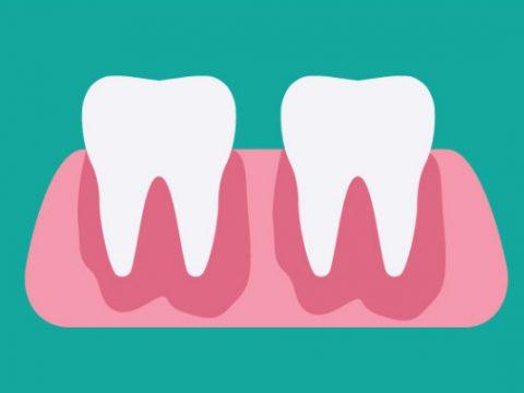 Gum Abscess