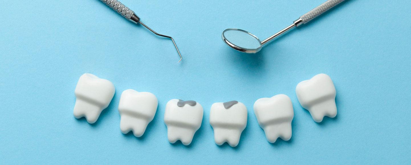 Children's Dentistry-Fillings